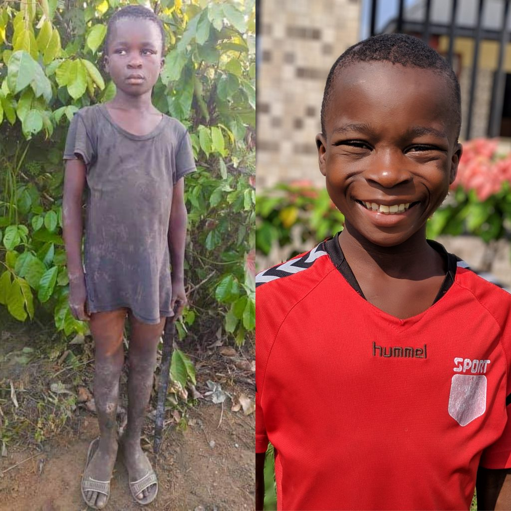 Godswill's before and after rescue